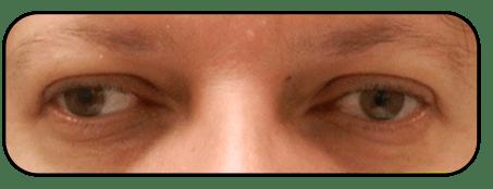 ניתוח פזילה - לפני