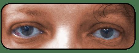 ניתוח פזילה - אחרי